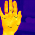 Thermographie Isotherme-Darstellung Hand